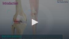 Knee Pain Treatment Vienna, VA | Knee Injuries Treatment Herndon